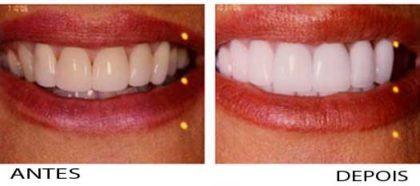 clareamento dental caseiro Antes e depois