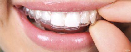 clareamento dental caseiro opções